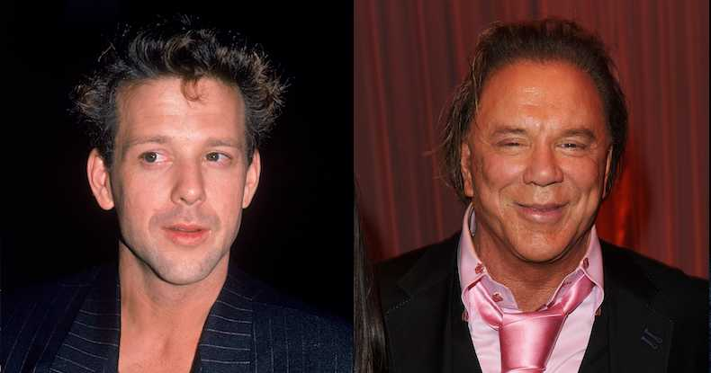 Top 10 Celebs That Became Super Ugly After Plastic Surgery